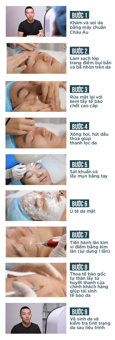 Hình ảnh về quy trình lăn kim trị sẹo