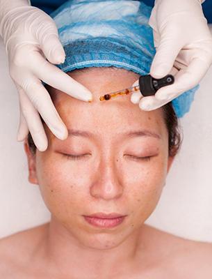 Hình ảnh điểm khác biệt khi lăn kim trị sẹo tại Bo Clinic