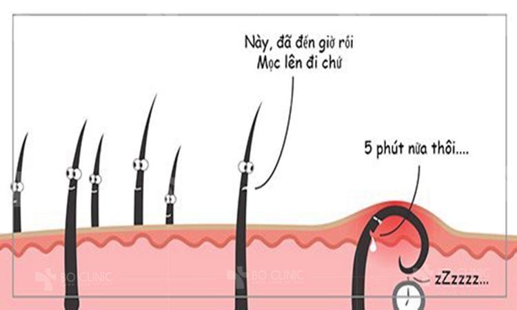 Bí quyết xử lý lông mọc ngược nhanh gọn lẹ trong vài giây