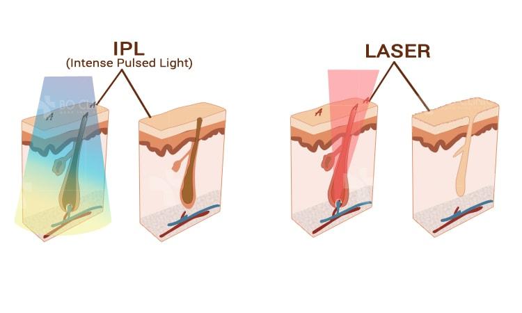 So sánh công nghệ triệt lông IPL với 5 cách waxing phổ biến