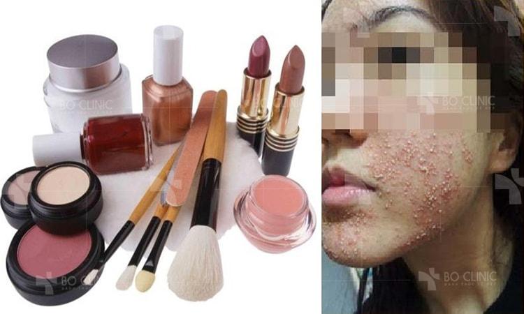 84 chất có trong mỹ phẩm cần tránh xa khi chăm sóc da mụn
