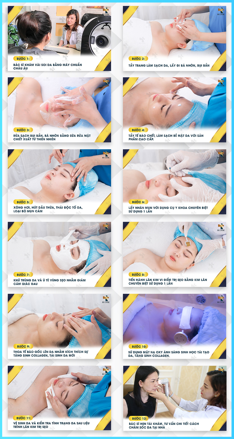 Liệu trình Lăn kim vi điểm trị sẹo tại Bo Clinic đạt chuẩn khoa học