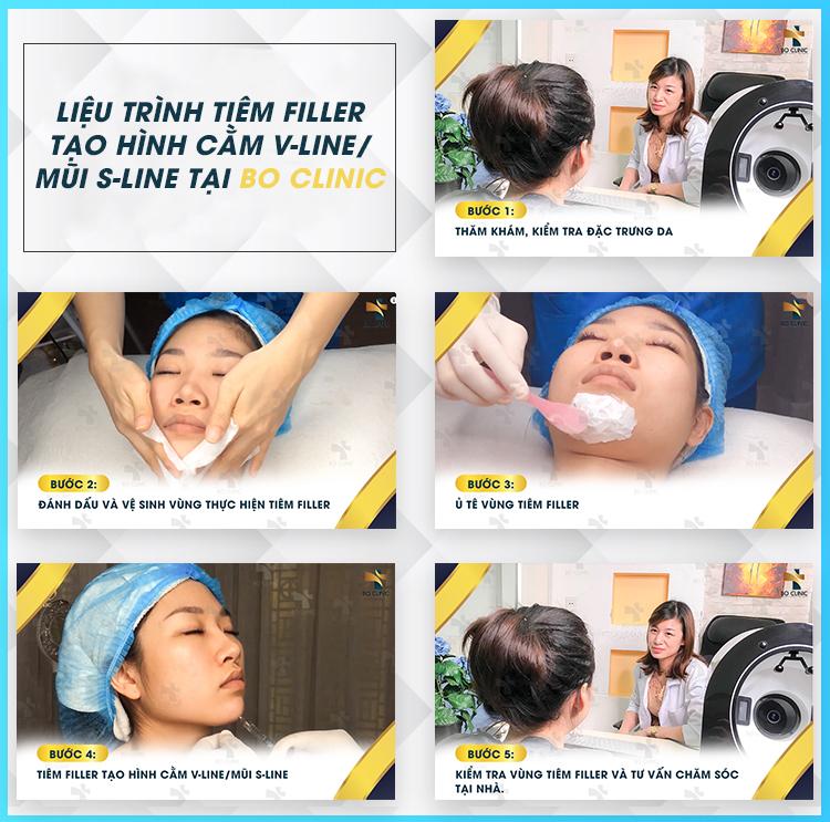 Liệu trình tiêm Filler tại Bo Clinic được thực hiện trực tiếp với bác sĩ có chuyên môn cao