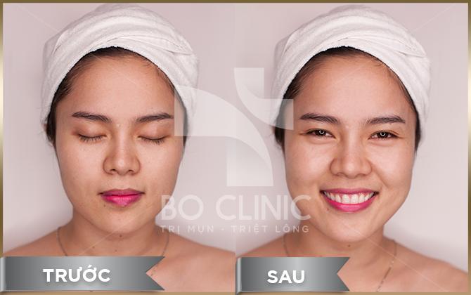 Bo Clinic là Spa chăm sóc da mặt uy tín hàng đầu tại TPHCM
