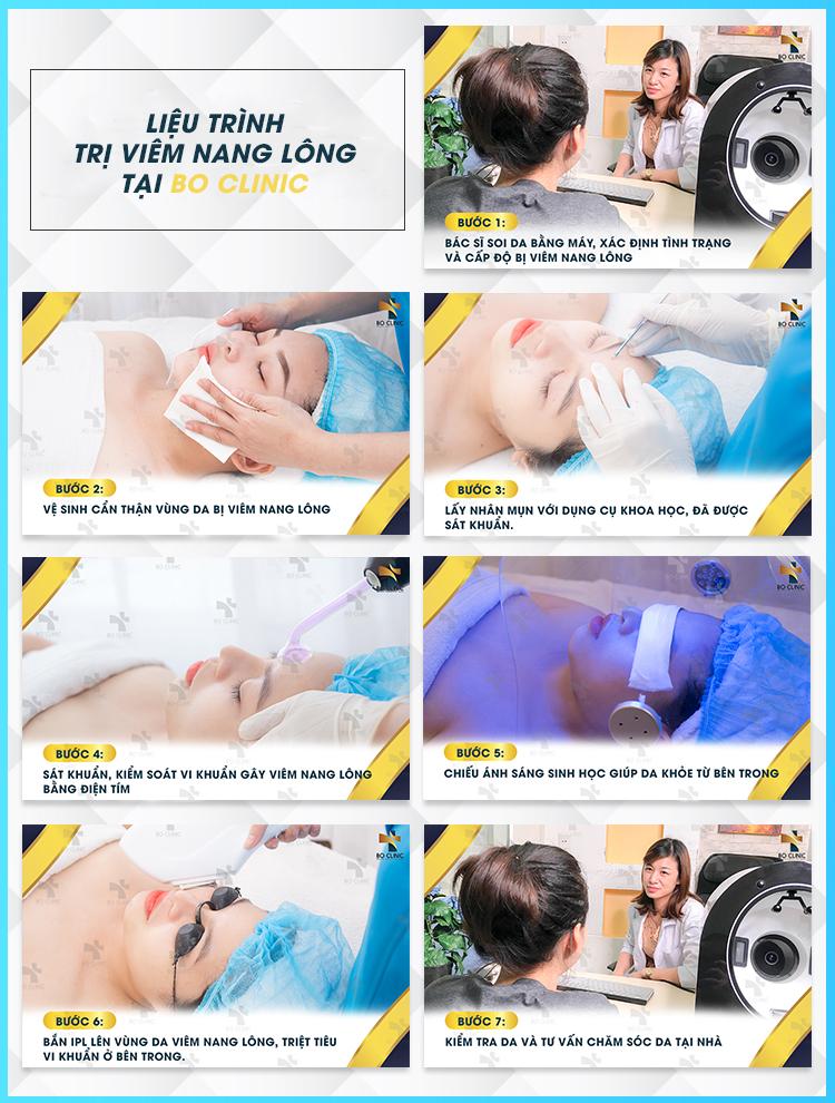 Liệu trình trị viêm nang lông bằng ánh sáng IPL tại Bo Clinic đem lại hiệu quả đáng kể