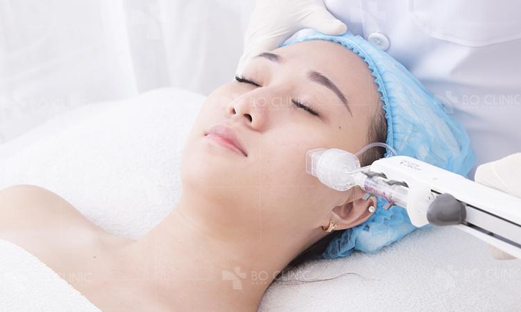 Công nghệ SCT Baby Skin căng bóng da của Hàn Quốc