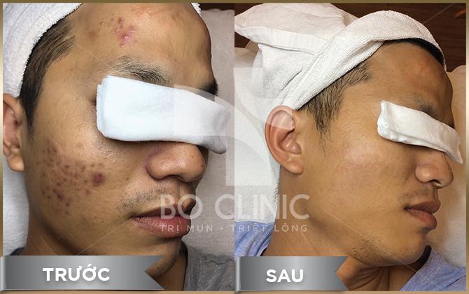 Hình ảnh khách hàng sau khi trải nghiệm dịch vụ tại Bo Clinic