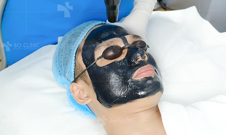 Than hoạt tính kết hợp Laser CO2 len lỏi vào sâu bên trong lỗ chân lông để loại bỏ độc tố