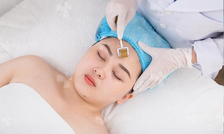 Lăn kim vi điểm trị sẹo giúp trẻ hóa da và se khít lỗ chân lông