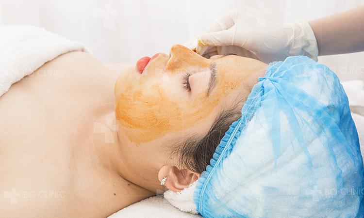 Peel da trị thâm giúp trẻ hóa da và se khít lỗ chân lông nhanh