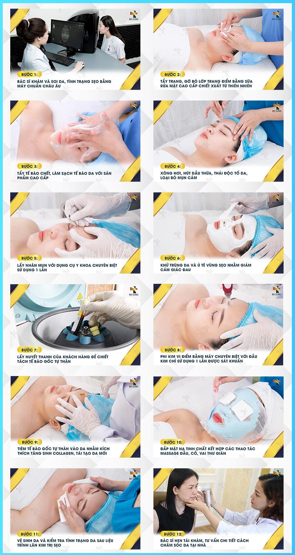 Liệu trình PRP trị sẹo, trị thâm nám ở Spa Bo Clinic