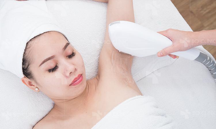 Triệt lông cơ thể công nghệ IPL hiệu quả dài lâu