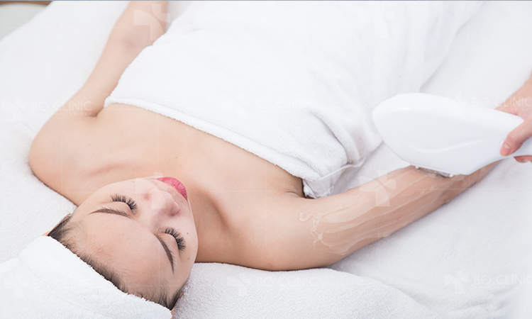 Triệt lông cơ thể công nghệ IPL từ Mỹ làm rụng lông tự nhiên, ngăn cản vi khuẩn gây viêm nang lông