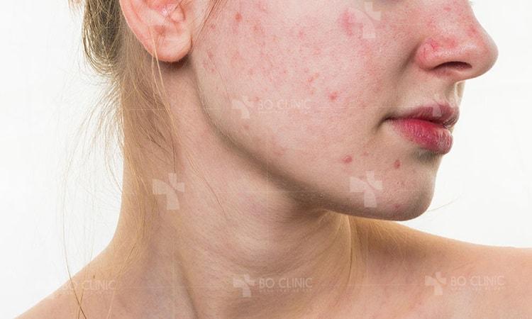 Làm sao để da hết mụn và thu nhỏ lỗ chân lông?