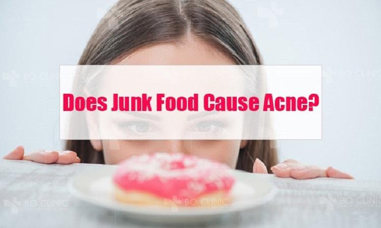 Chế độ sinh hoạt và thực đơn ăn uống góp phần làm da bị mụn