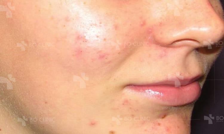 Da nhờn bị mụn không nên làm gì khi chăm sóc da tại nhà?