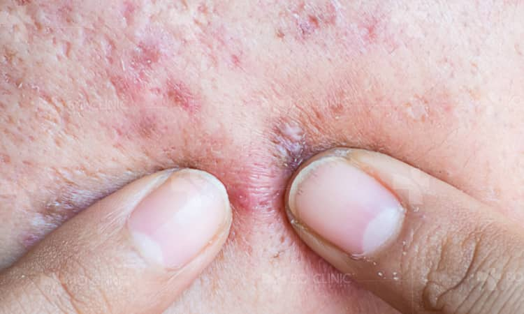 Xin bác sĩ tư vấn cách nặn mụn mủ ở nhà không để lại sẹo?!
