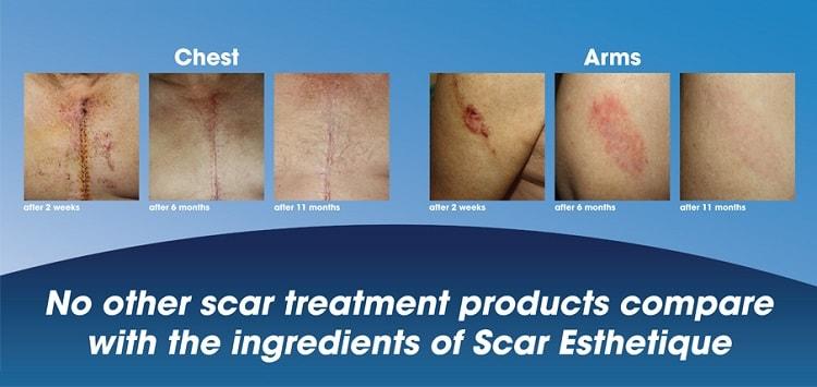 Hiệu quả kem trị sẹo Scar Esthetique từ Mỹ đã được các chuyên gia da liễu công nhận trên toàn thế giới