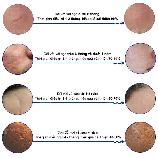 Hiệu quả kem trị sẹo Scar Esthetique từ Mỹ chỉ thấy rõ khi dùng trên sẹo nhẹ