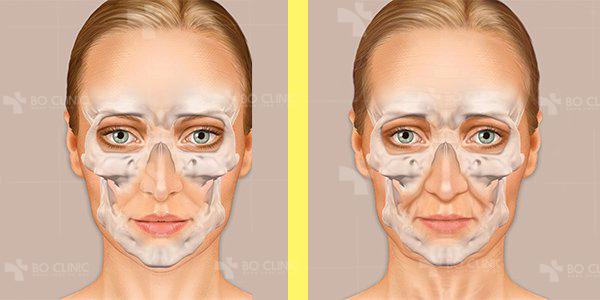 Làn da bị lão hóa hơn 10 tuổi so với tuổi thực tế với lỗ chân lông to hơn, xỉn màu, nhiều mụn