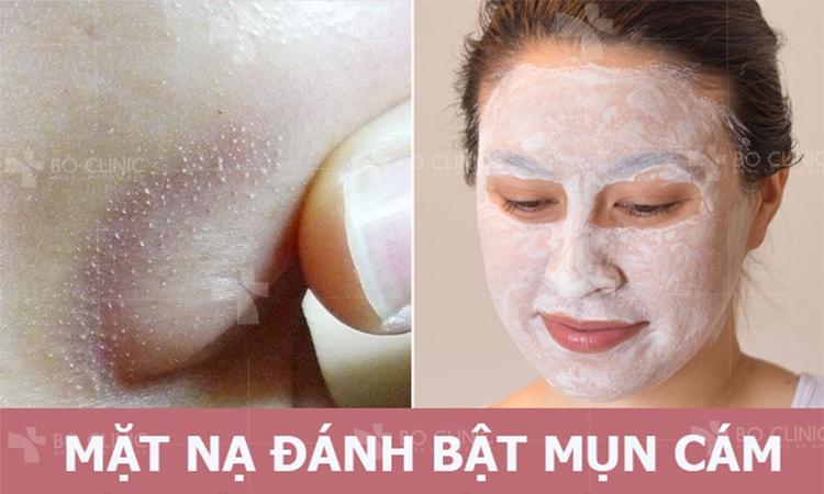 Mong ước của phái đẹp về một làn da sạch mịn dễ dàng thành hiện thực nhờ mặt nạ lột mụn cám