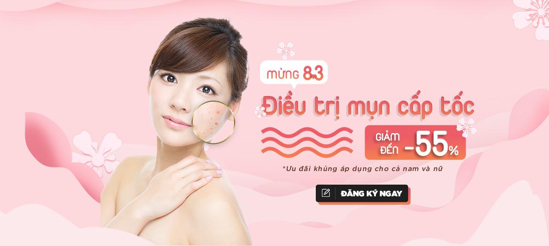 Promo Trị Mụn 55% Tháng 3 (banner)