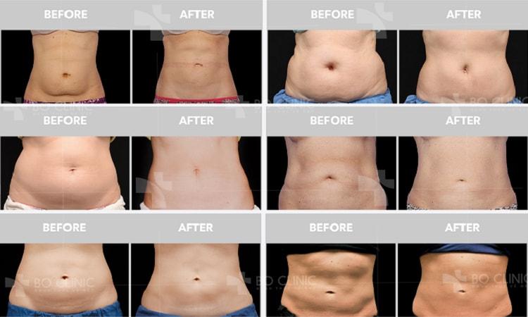 Đông Hủy Mỡ giảm béo bụng không phẫu thuật