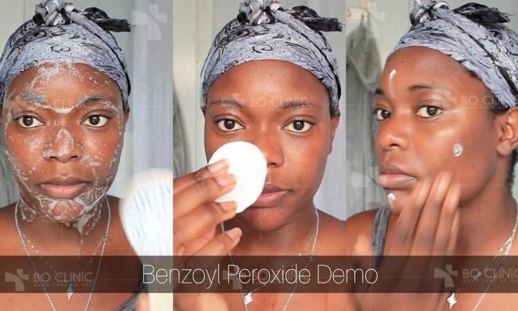 Các sản phẩm chứa Benzoyl Peroxide trị mụn nhanh và hiệu quả nhất tại nhà.
