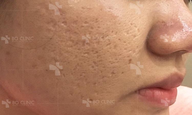 Trị sẹo rỗ thì lăn kim, bắn laser hay thuốc gia truyền tốt hơn?