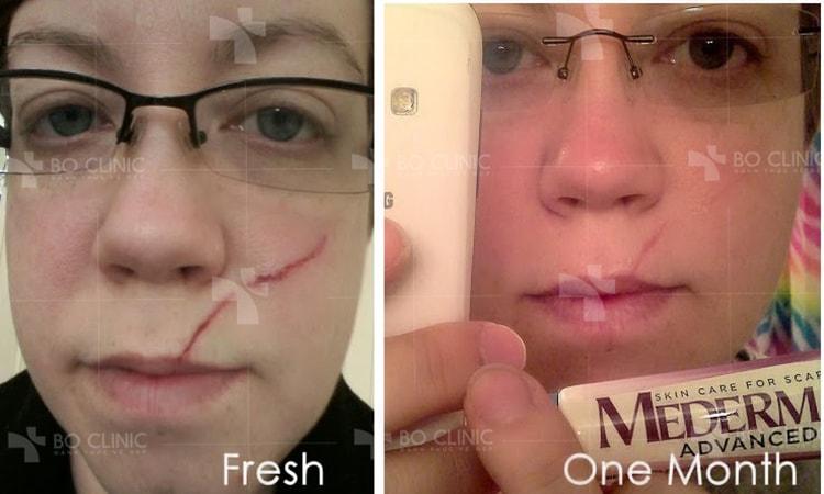 Bạn có thể thoa kem trị sẹo Mederma 20g chính hãng lên vết thương ngay sau khi nó lành, hoặc trong trường hợp vết sẹo phẫu thuật, khi chỉ khâu được lấy đi.