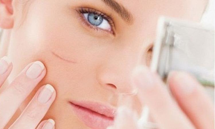Top 7 sản phẩm trị sẹo hiệu quả nhất hiện nay là gì?