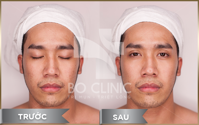 Hiệu quả sau khi thực hiện thải độc da than hoạt tính DK CO2 tại Bo Clinic