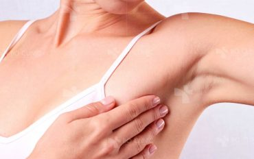 Làm sao để dọn sạch vùng da dưới cánh tay hiệu quả