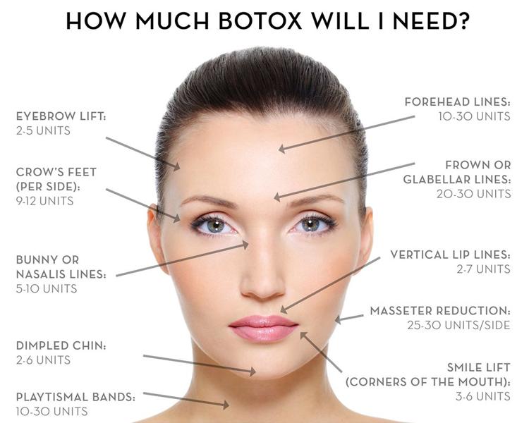 Liều lượng tiêm botox ở mỗi vị trí khác nhau, liều lượng được tính theo đơn vị