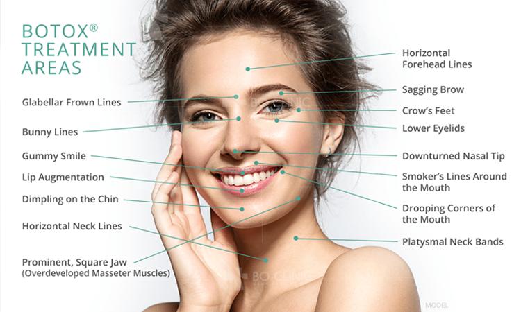 Những vùng da có thể tiêm Botox