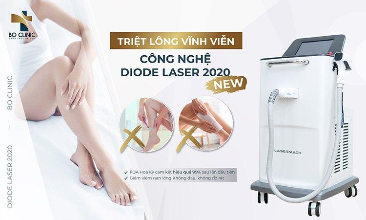 Triệt lông Diode Laser